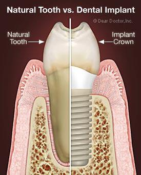 natural_tooth
